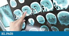 A transient ischemic attack or mini stroke may be shorter-lived than a full-blown stroke but the symptoms can be just as devastating. Brain Lesions, Transient Ischemic Attack, Migraine Attack, Brain System, White Matter, Gambling Addiction, Healthy Cholesterol Levels, Normal Blood Pressure, Cancer Fighting Foods