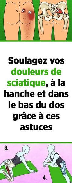 Soulagez vos douleurs de sciatique, à la hanche et dans le bas du dos grâce à ces astuces Natural Face Moisturizer, Heath Care, Pilates Video, Body Challenge, Nerve Pain, Anti Cellulite, Reflexology, Health Benefits, Health And Beauty