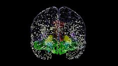 Patients with moderate to severe depression reported significant improvements in mood when researchers precisely stimulated a brain region called the orbitofrontal cortex (OFC), according to a UC San Francisco research study Fighting Depression, Dealing With Depression, Depression Symptoms, Ways To Reduce Anxiety, How To Calm Anxiety, Deep Brain Stimulation, Depression Treatment, Research, How To Find Out