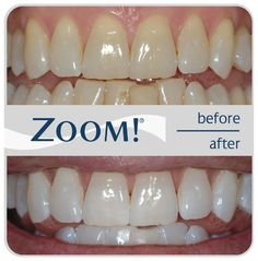 ZOOM! One-hour teeth whitening before and after - The Classic Smile