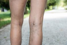 We can quickly identify varicose veins with a darker tone in our skin, and blue. In this article, you can find useful home remedies for varicose veins. Varicose Vein Remedy, Varicose Veins Treatment, Natural Treatments, Witch Hazel Uses, Foot Remedies