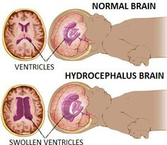 This post discusses Social Security Disability Benefits for hydrocephalus. If you or someone you care for has been assessed with hydrocephalus, it will Nursing Study Tips, Nursing Care, Nicu Nursing, Shaken Baby Syndrome, Brain Diagram, Nurse Pics, Ultrasound Tech, Pediatric Nursing, Midwifery