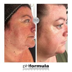 Excellent chronic redness skin resurfacing results from our pHformula skin specialists in the UK.  Thank you for sharing these great results @mlm_aesthetics #pHformula #skinresurfacing #artofskinresurfacing #skinbrightening #skinhealth #results #vitaminC # #pHformulaUK #mlm_aesthetics