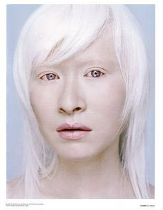 albino, beautiful white hair....