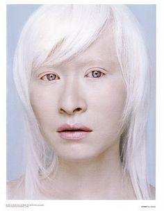 albino, beautiful white hair....