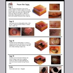 wound staging  Google Search | nursing | Nursing home administrator, Wound care, Lpn classes