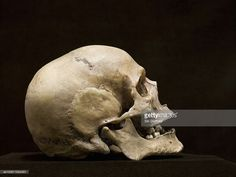 Stock Photo : Human skull, side view, studio shot