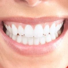 Sensitive Teeth Remedy: 8 Ways to Improve Sensitive Teeth