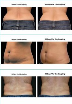 cool sculpting permanent, non-surgical fat loss option