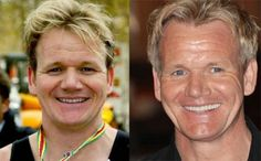 Celebrity teeth: before and after -