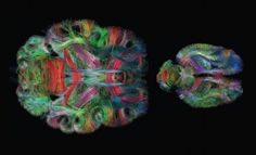 Images produced with Diffusion spectrum magnetic resonance imaging.  These methods capture six dimensions of information (three spatial and three about water diffusion) to create the images.