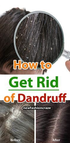Are you ashamed of wearing a black dress? Try natural home remedies for dandruff. Using these remedies on a regular basis, you will get an effective result within 15 days. Heading: Apply natural home remedies for dandruff and shine with your hair. How To Remove Dandruff, How To Cure Pimples, Getting Rid Of Dandruff, Home Remedies For Tanning, Home Remedies For Dandruff, Natural Home Remedies, Hair Dandruff, Anti Dandruff Shampoo, Coconut Oil For Dandruff