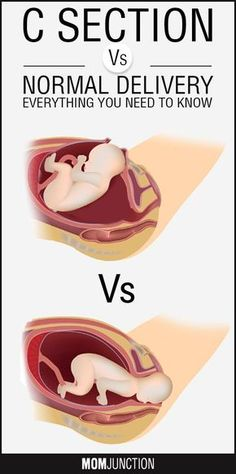 Normal Delivery Vs Cesarean – Risks And Benefits Twining pregnancy c section - Pregnancy Pregnancy Health, Pregnancy Care, First Pregnancy, Pregnancy Guide, Normal Birth, Normal Delivery, C Section, Pregnancy Information, Trimesters Of Pregnancy
