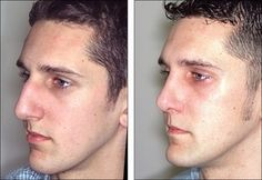 The Foolproof Rhinoplasty Strategy - Plastic Surgery Center Of Detroit MI Rhinoplasty Surgery, Nose Surgery, Honey Face Cleanser, Nose Fillers, Nose Reshaping, Surgery Center, Liposuction, Plastic Surgery, Hair