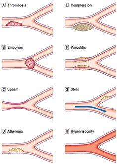 Ischemia causes