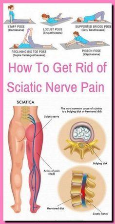 Sciatica Stretches, Sciatica Pain Relief, Knee Pain Relief, Sciatic Pain, Hip Stretches, Sciatic Nerve Exercises, Lower Back Pain Relief, Lower Leg Pain, Sciatica Massage