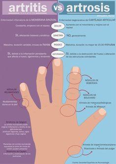 Aquí te dejo una infografía comparativa entre artritis vs. artrosis         Fuente