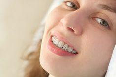 http://www.fudalej.eu Orthodontist Warsaw #orthodontist
