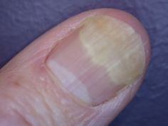 Onycholysis - nail separation.