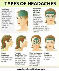 Migraine Remedies Reference for the next time I have a headache - Do you suffer Migraines? Don't despair, we've put together the best collection of Homemade Migraine Remedies and they really work! Check them out now. Health And Wellness, Health Care, Health Fitness, Health Tips, Fitness Foods, Thrive Fitness, Fitness Hacks, Health Articles, Workout Fitness