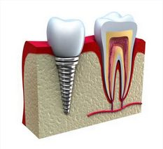 How Much Does a #Tooth #Implant Cost? We've got the answer at howmuchdoesitcost.us