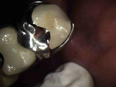 In a previous article I described a technique to allow the lab to fabricate a PFM crown to the clasping and rest seat of an existing removable partial. Porcelain Crowns, Restorative Dentistry, The Crown, Health, Health Care, Salud