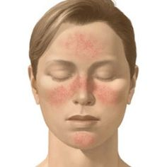 Rosacea:  NOTE, no where in the discussion of causes or treatments, does this article address an overabundance of YEAST. I highly recommend a sugar and carb free diet for 30-40 days, to starve off an over-growth of yeast in one's body, along w/ a detox to support the body's systems while the detox is taking place. You will be amazed! The first 3 days are the worst as you must get over the cravings. By day 10, you are fine with not having sweets.