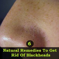6 Ways to Get Rid of Blackheads Naturally |  Radish & juice of 1 lemon.  Grate a radish and add to it juice of one lemon. Blend well and apply all over the face. Leave it to dry and rub vigorously before washing. It removes blackheads.  Cinnamon & 1 tsp lime juice:  Mix one teaspoon of lime juice and one teaspoon of cinnamon powder(daalchini). Apply this paste on the blackhead. Let it stand for 10 minutes. Wash off by rubbing with hands. Five to six applications removes blackheads.