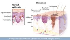 12 Best Basal Cell Carcinoma images in 2019 | Basal cell