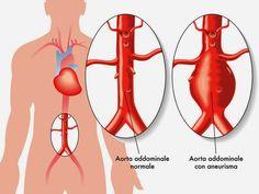 Kami merekomendasikan Ginkgo biloba plus capsule sebagai obat penyakit pembuluh darah perifer  yang...