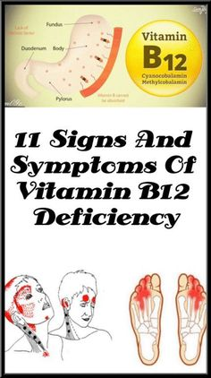 11 Signs And Symptoms Of Vitamin Deficiency - Health - Diet - Food - Vitamin B Deficiency Symptoms, B12 Deficiency Signs, Nail Health Signs, Vitamin A Foods, Vitamine B12, Tongue Health, Naturopathy, Signs And Symptoms, Natural Health Remedies