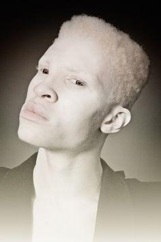 Albino model Shaun Ross by Daniel Bolliger Albino Model, Shaun Ross, Melanism, Human Reference, You Draw, Black Boys, Interesting Faces, Male Beauty, Along The Way