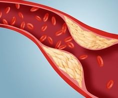 нормализовать холестерин в крови препараты
