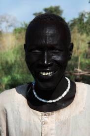 melanism human - Google Search