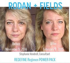 "Here's what Stephanie had to say: ""Aloha! I wanted to share my own personal before and after photos - I started using Redefine 11/9/14 and took the second picture yesterday, 2/9/15. Three months of the AMP MD roller, Macro E, Acute care, lip serum, eye cream, and Redefine regimen. I'm pretty excited!!"