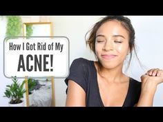 GET RID OF YOUR ACNE FOREVER! SERIOUSLY WORKS! - YouTube