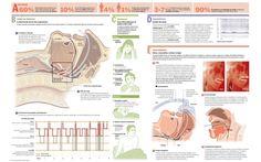Síndrome de apnea obstructiva del sueño: causas, síntomas y tratamiento #SAOS