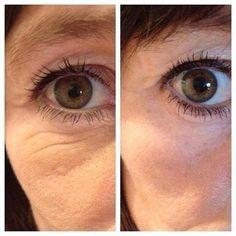 Borra las arrugas de los ojos con Nerium-Optimera http://beautyskin1.nerium.com