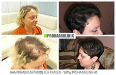 Hair Transplantation and Hair Pigmentation Before After Photos - Results Hair Loss Cure, Hair Loss Remedies, Prevent Hair Loss, Hair Pigmentation, Hair Fall Solution, Cosmetic Clinic, Implant, Male Pattern Baldness, Hair Falling Out