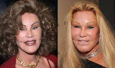 12 Plastic Surgeries Gone Wrong. Very Wrong.
