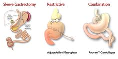 http://gastricbypass.me/  Everything you need to know about all the Bariatric Surgeries like gastric bypass, gastric sleeve and gastric band. Also, bariatric surgery cost, bariatric surgery complications, gastric bypass risks, health insurance pay for bariatric surgery, before and after videos of bariatric surgery and comparison