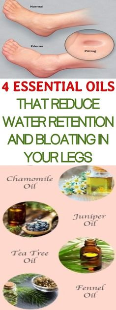 4 Essential Oils That Reduce Water Retention and Bloating In Your Legs