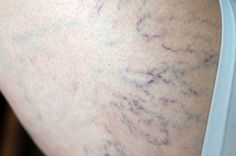 Eglantine Med Spa provides spider vein removal treatments.