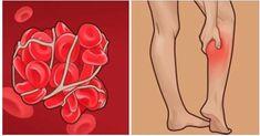 Trombóza – tichý zabijak. Prečítajte si, ako včas odhaliť príznaky trombózy!   Báječné Ženy