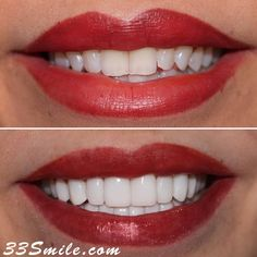 A total of 18 teeth! All Prepless Veneers. We were very happy with how these turned out. #drjamsmiles #33Smile . . All photos and video of patients are of our actual patients. All media is the of Cosmetic Dental Associates. Any use of media contained herein is prohibited without written consent. . . #satx #satxdentist #dentistry #goals #smile #teeth #instagoals #transformationtuesday #beforeandafter #whiteteeth #perfect #transformation #teethwhitening #veneers #Invisalign #porcelainveneers #sa Insta Goals, Porcelain Veneers, Dental Cosmetics, Smile Teeth, Dental Procedures, Cosmetic Dentistry, Transformation Tuesday, Beautiful Smile, Teeth Whitening