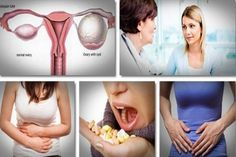 Top 8 Natural Home Remedies For Ovarian Cysts