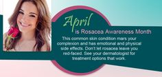 April is Rosacea Awareness Month
