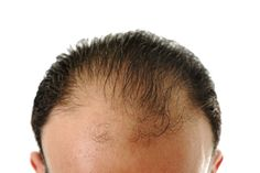 The Best Home Remedies For Hair Loss. - http://www.373au.com/the-best-home-remedies-for-hair-loss.html