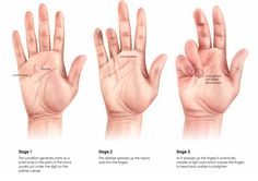 dupuytren's contracture   what is a dupuytren s contracture