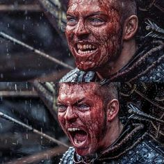 Ivar The Boneless #Vikings I CANNOT WAIT FOR THIS PART! He looks wicked! :D